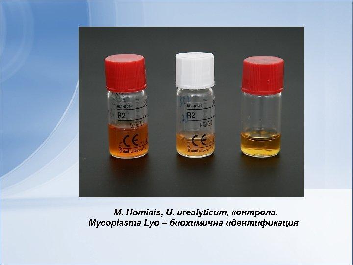 M. Hominis, U. urealyticum, контрола. Mycoplasma Lyo – биохимична идентификация