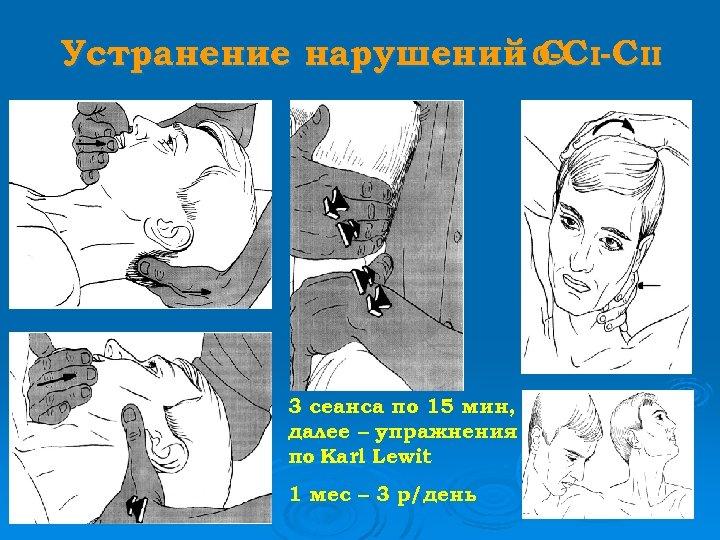 Устранение нарушений 0 -C II С 3 сеанса по 15 мин, далее – упражнения