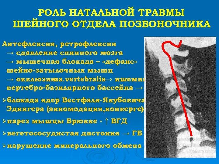 РОЛЬ НАТАЛЬНОЙ ТРАВМЫ ШЕЙНОГО ОТДЕЛА ПОЗВОНОЧНИКА Антефлексия, ретрофлексия → сдавление спинного мозга → мышечная