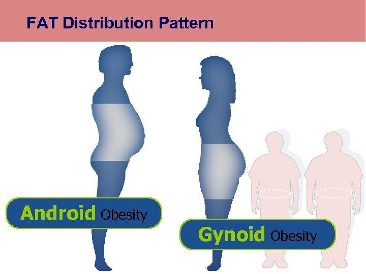 FAT Distribution Pattern Android Obesity Gynoid Obesity