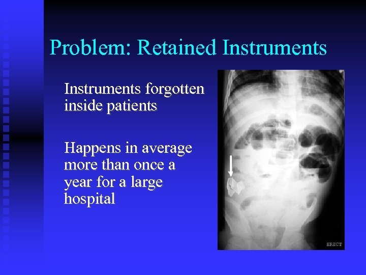 Problem: Retained Instruments forgotten inside patients Happens in average more than once a year