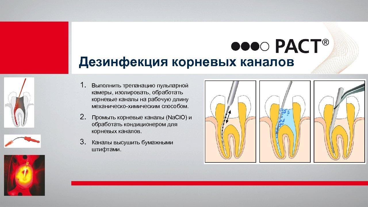 Дезинфекция корневых каналов 1. Выполнить трепанацию пульпарной камеры, изолировать, обработать корневые каналы на рабочую