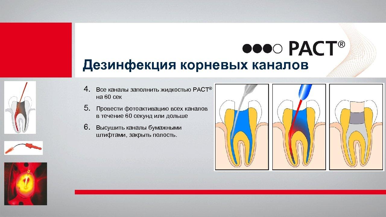 Дезинфекция корневых каналов 4. Все каналы заполнить жидкостью PACT® на 60 сек 5. Провести