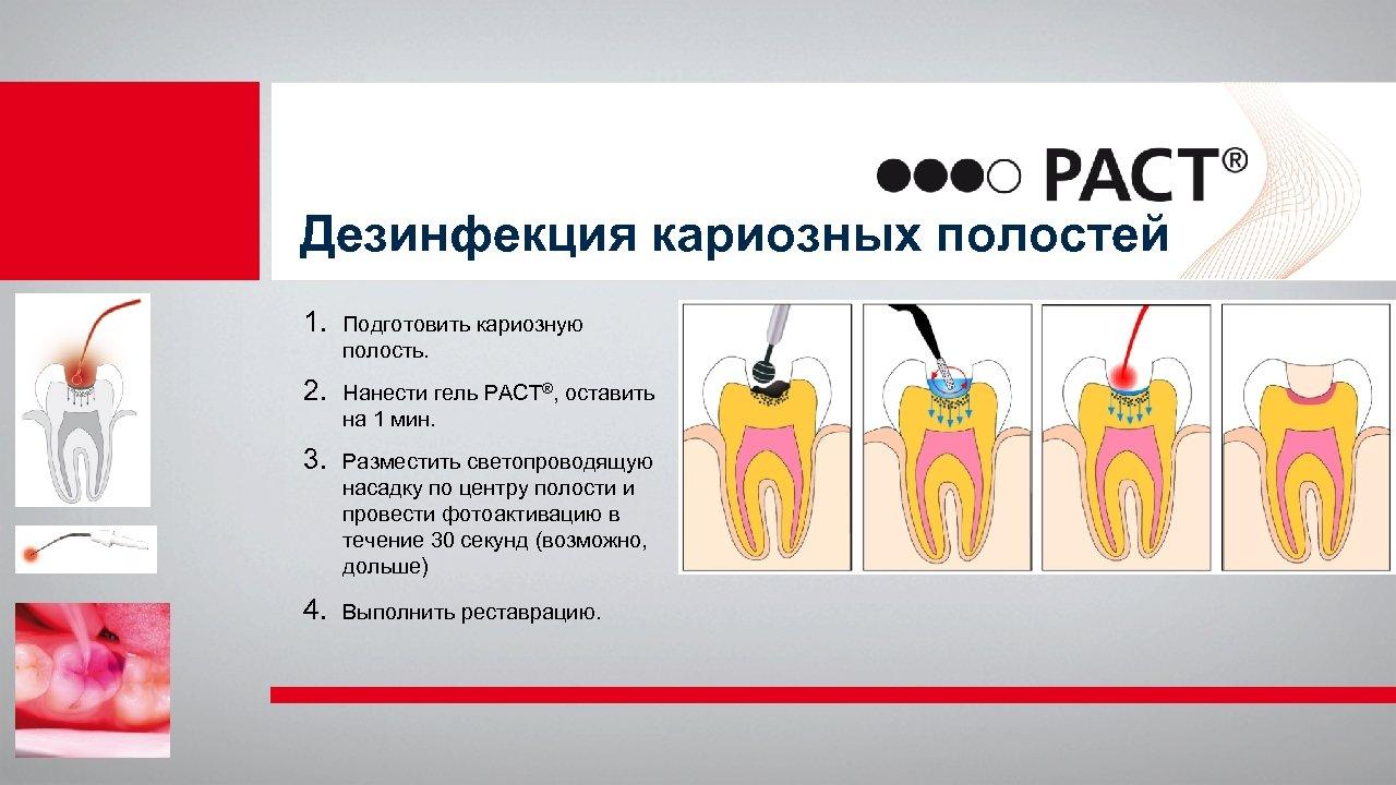 Дезинфекция кариозных полостей 1. Подготовить кариозную полость. 2. Нанести гель PACT®, оставить на 1