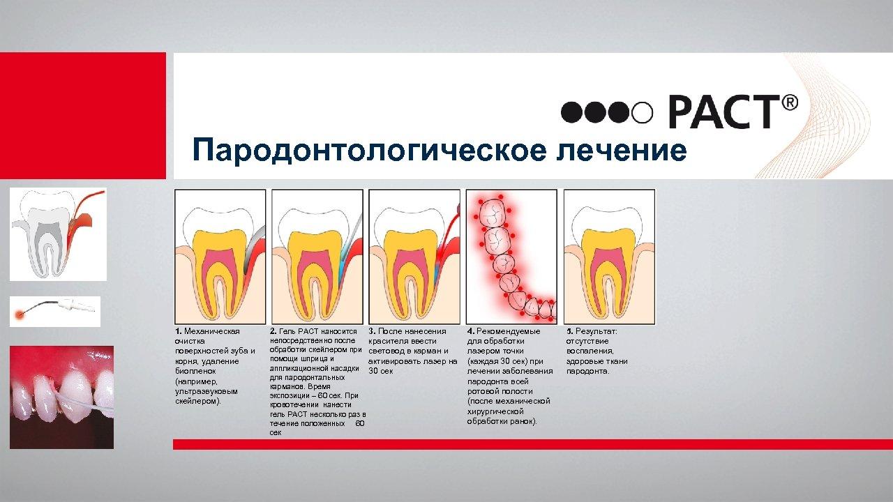 Пародонтологическое лечение 1. Механическая очистка поверхностей зуба и корня, удаление биопленок (например, ультразвуковым скейлером).