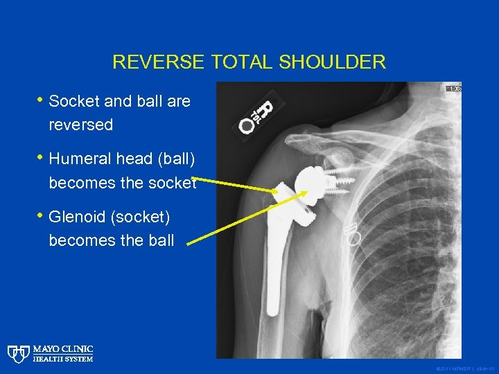 REVERSE TOTAL SHOULDER • Socket and ball are reversed • Humeral head (ball) becomes