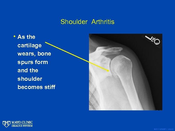 Shoulder Arthritis • As the cartilage wears, bone spurs form and the shoulder becomes