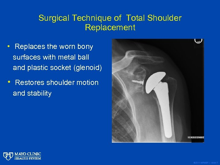 Surgical Technique of Total Shoulder Replacement • Replaces the worn bony surfaces with metal