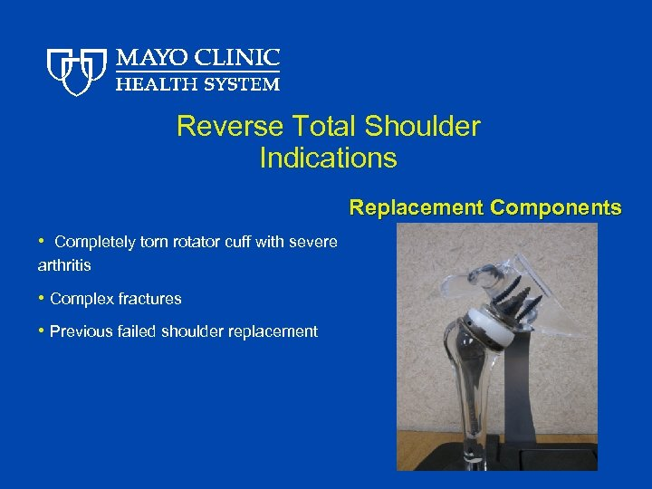 Reverse Total Shoulder Indications Replacement Components • Completely torn rotator cuff with severe arthritis