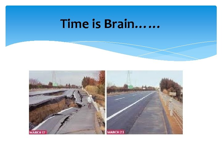 Time is Brain……
