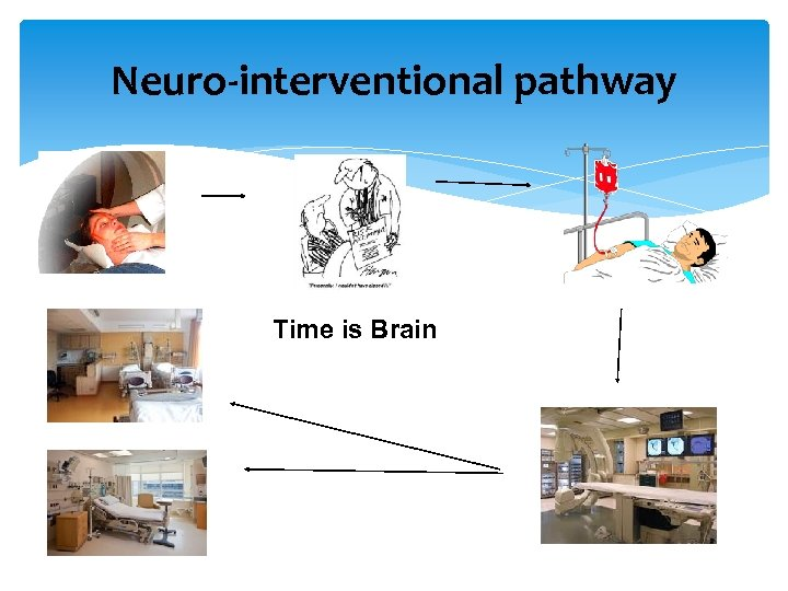 Neuro-interventional pathway 999 Time is Brain