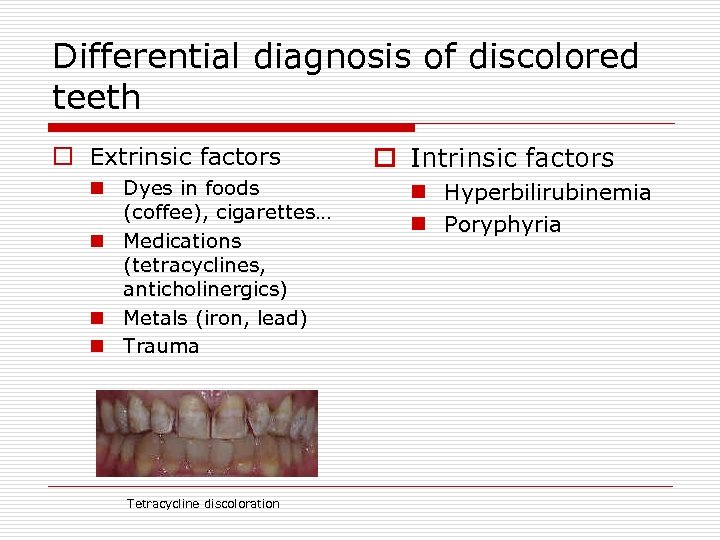 Differential diagnosis of discolored teeth o Extrinsic factors n Dyes in foods (coffee), cigarettes…