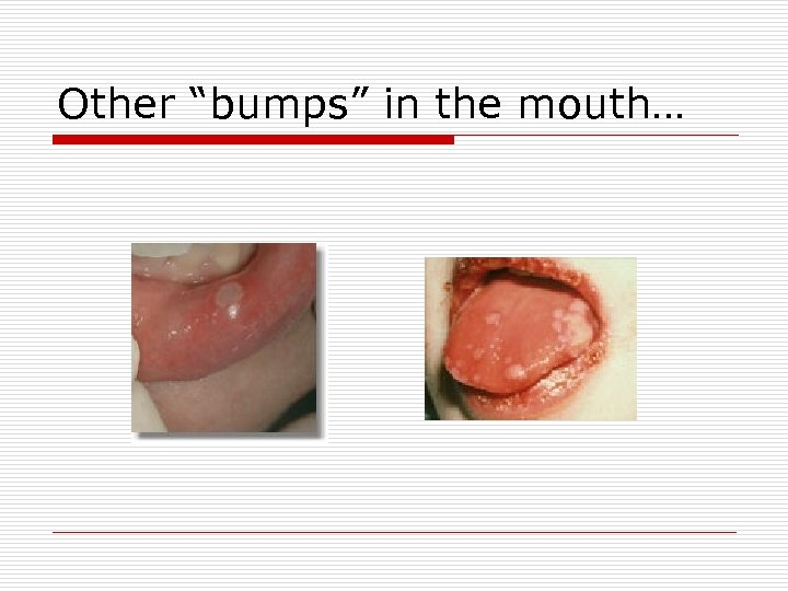 """Other """"bumps"""" in the mouth…"""