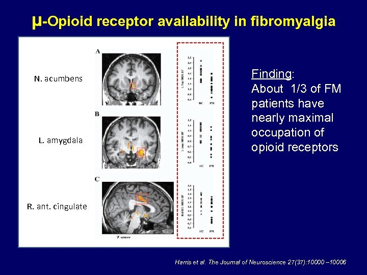 μ-Opioid receptor availability in fibromyalgia N. acumbens L. amygdala Finding: About 1/3 of FM