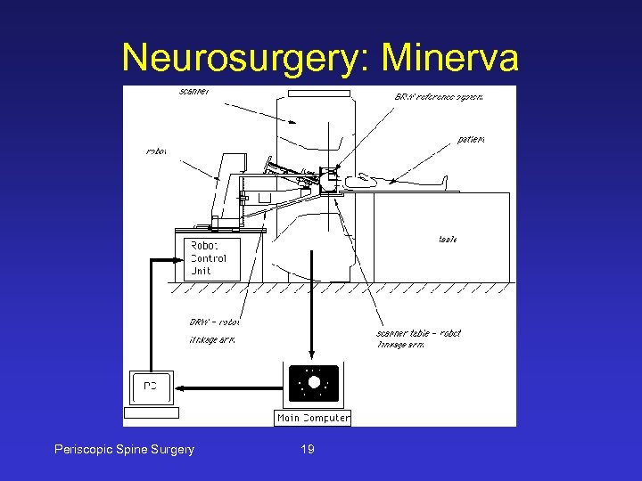 Neurosurgery: Minerva Periscopic Spine Surgery 19