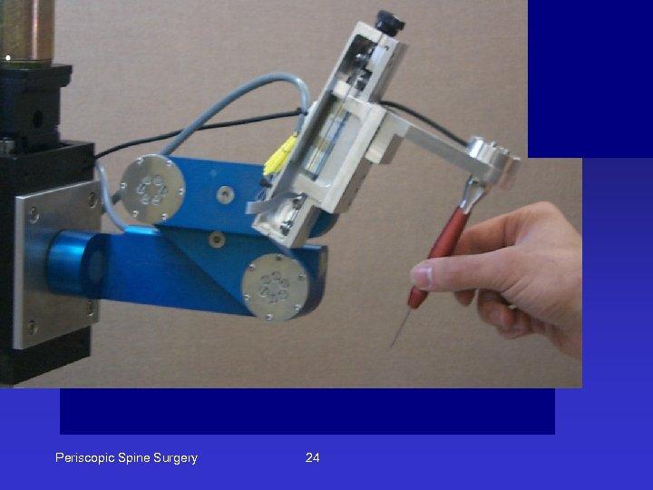 Periscopic Spine Surgery 24