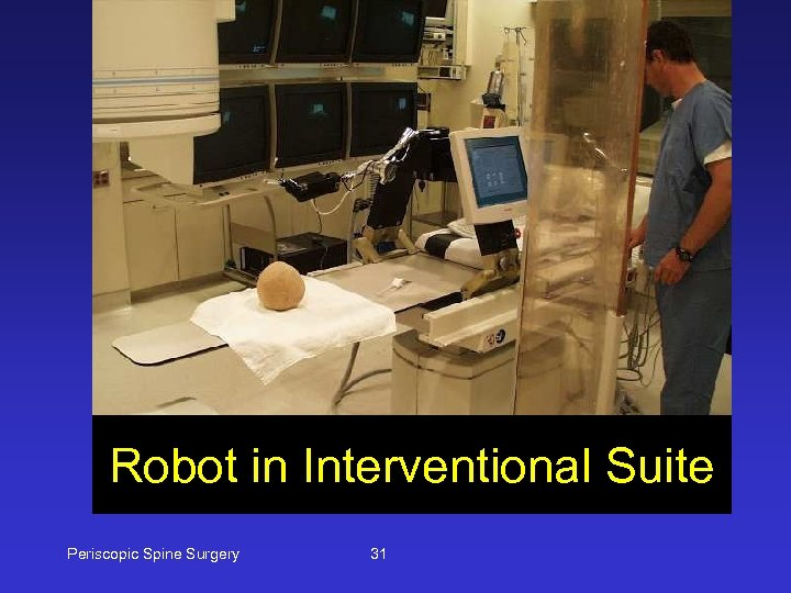 Robot in Interventional Suite Periscopic Spine Surgery 31