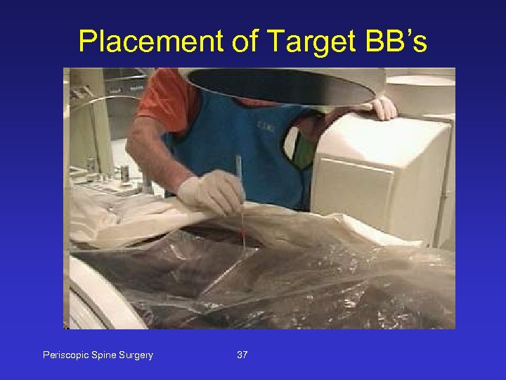 Placement of Target BB's Periscopic Spine Surgery 37