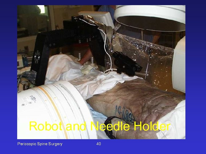 Robot and Needle Holder Periscopic Spine Surgery 40