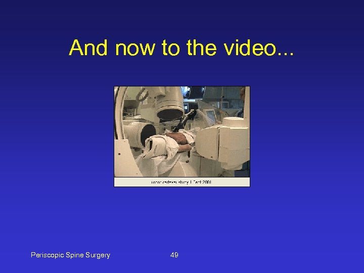 And now to the video. . . Periscopic Spine Surgery 49