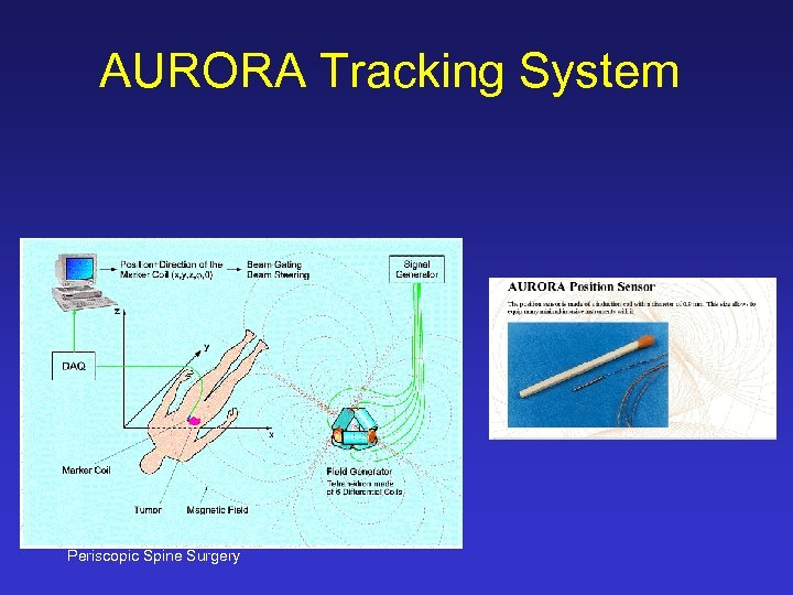 AURORA Tracking System Periscopic Spine Surgery