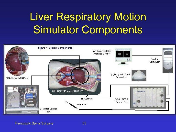Liver Respiratory Motion Simulator Components Periscopic Spine Surgery 53