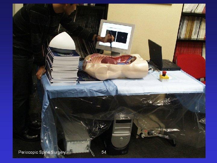 Periscopic Spine Surgery 54