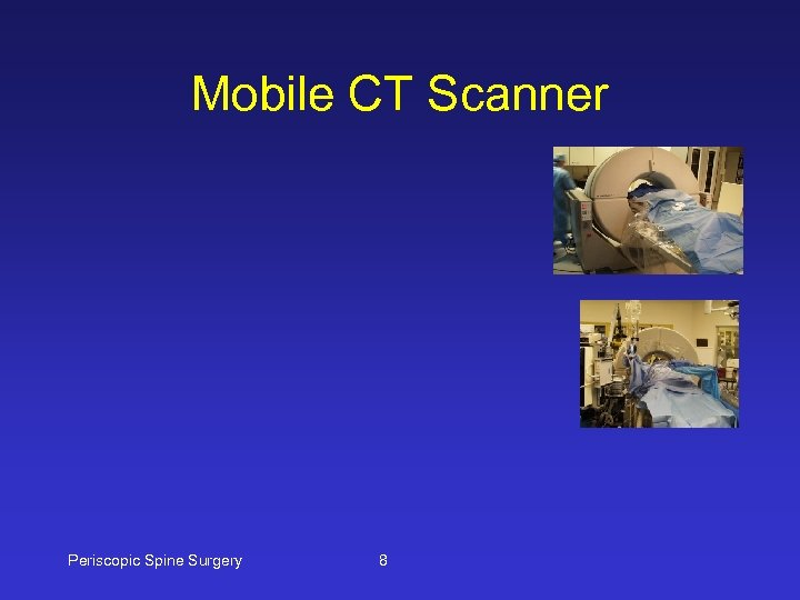 Mobile CT Scanner Periscopic Spine Surgery 8