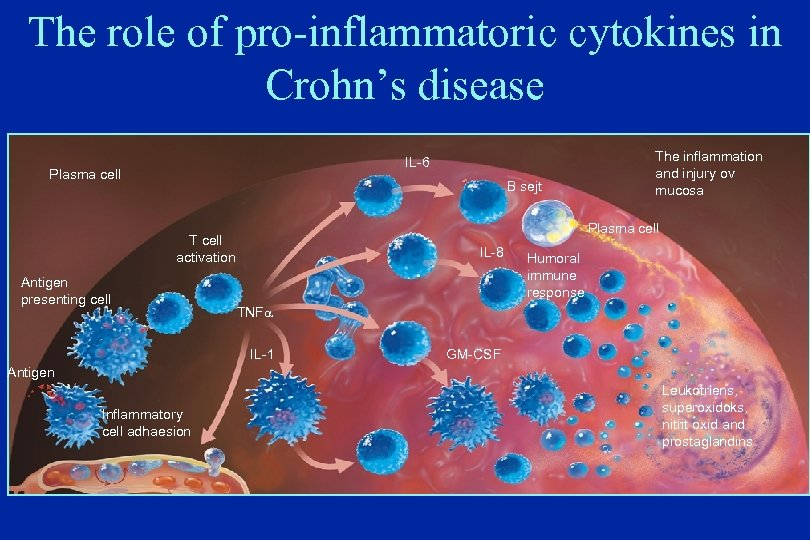 The role of pro-inflammatoric cytokines in Crohn's disease IL-6 Plasma cell B sejt Plasma