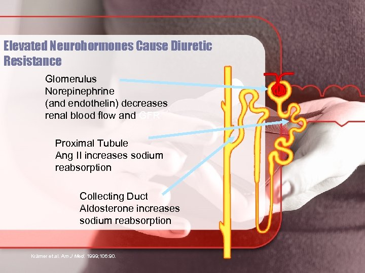 Elevated Neurohormones Cause Diuretic Resistance Glomerulus Norepinephrine (and endothelin) decreases renal blood flow and