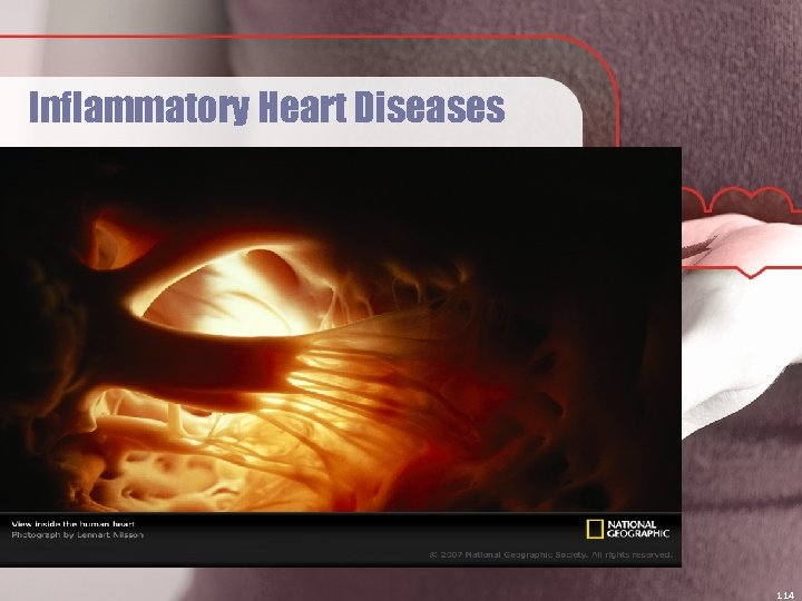 Inflammatory Heart Diseases 114