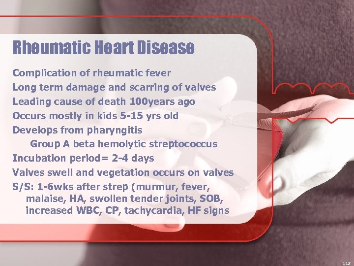Rheumatic Heart Disease Complication of rheumatic fever Long term damage and scarring of valves