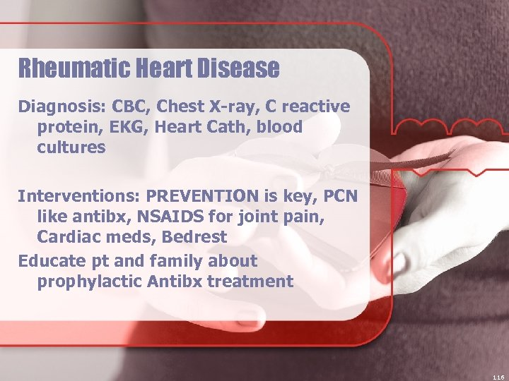 Rheumatic Heart Disease Diagnosis: CBC, Chest X-ray, C reactive protein, EKG, Heart Cath, blood