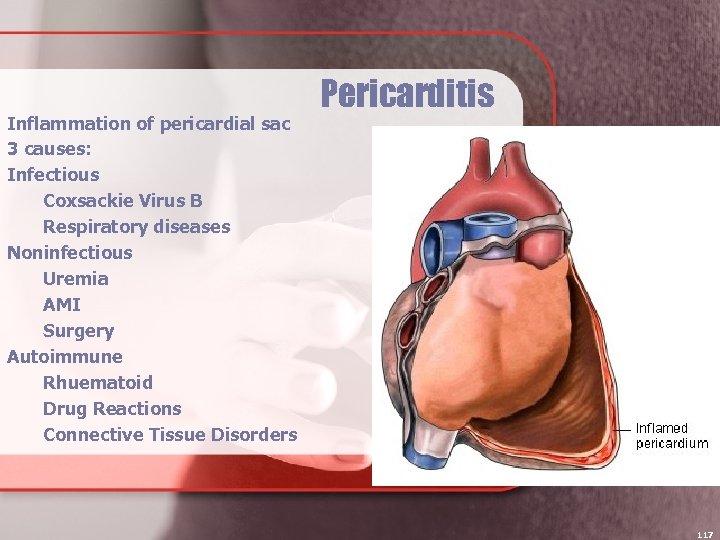 Inflammation of pericardial sac 3 causes: Infectious Coxsackie Virus B Respiratory diseases Noninfectious Uremia