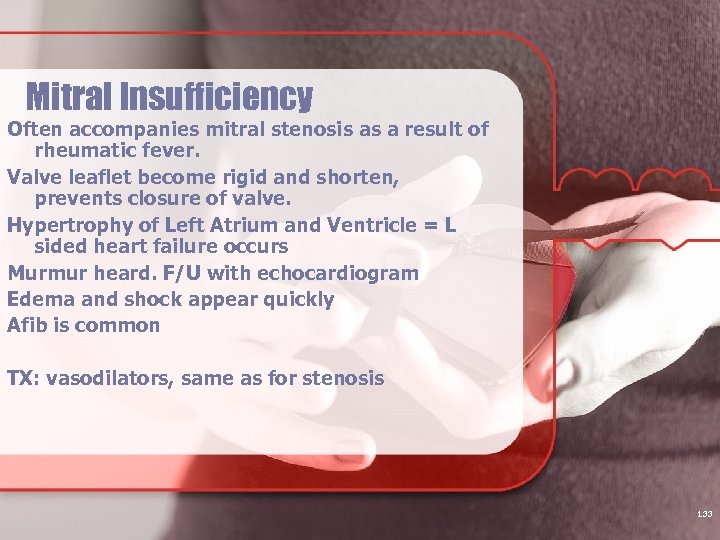 Mitral Insufficiency Often accompanies mitral stenosis as a result of rheumatic fever. Valve leaflet