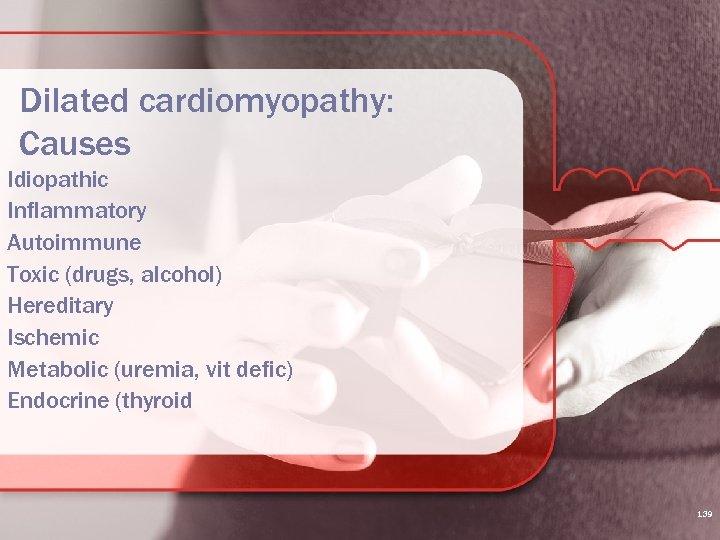Dilated cardiomyopathy: Causes Idiopathic Inflammatory Autoimmune Toxic (drugs, alcohol) Hereditary Ischemic Metabolic (uremia, vit