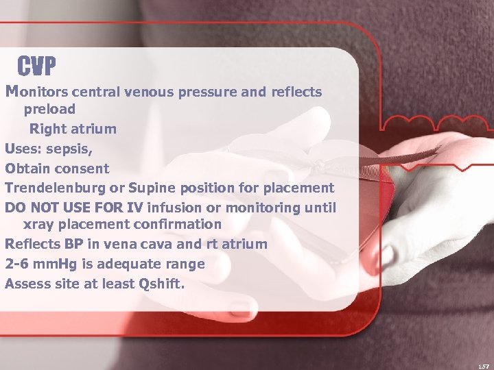 CVP Monitors central venous pressure and reflects preload Right atrium Uses: sepsis, Obtain consent
