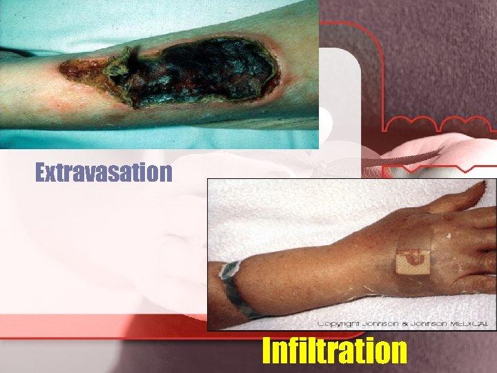 Extravasation Infiltration