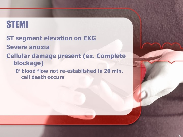 STEMI ST segment elevation on EKG Severe anoxia Cellular damage present (ex. Complete blockage)
