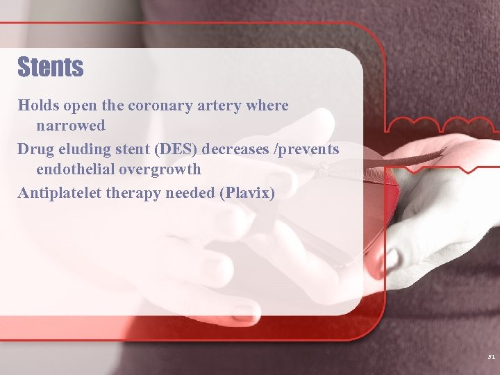 Stents Holds open the coronary artery where narrowed Drug eluding stent (DES) decreases /prevents