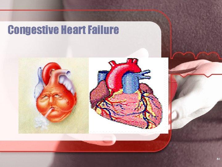 Congestive Heart Failure 80