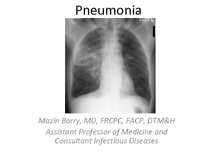 Pneumonia Mazin Barry, MD, FRCPC, FACP, DTM&H Assistant Professor of Medicine and Consultant Infectious