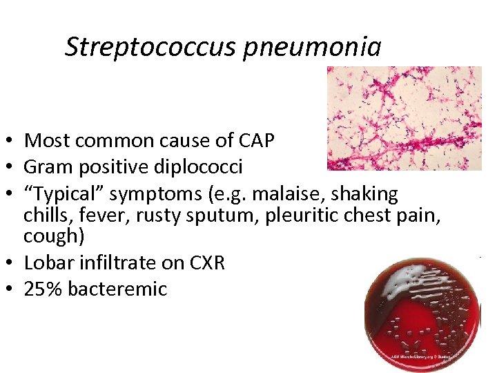 """Streptococcus pneumonia • Most common cause of CAP • Gram positive diplococci • """"Typical"""""""