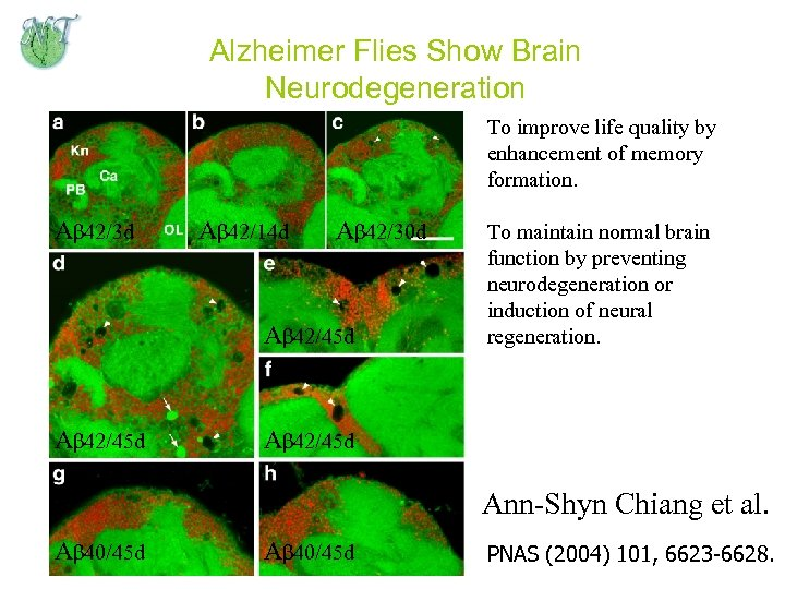 Alzheimer Flies Show Brain Neurodegeneration To improve life quality by enhancement of memory formation.
