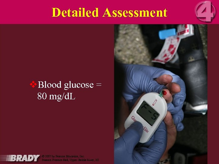 Detailed Assessment v. Blood glucose = 80 mg/d. L 16 March 2018 Orange County