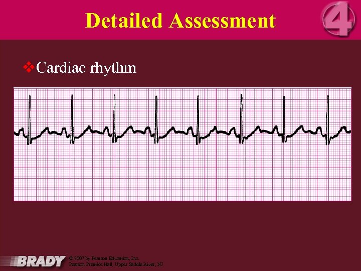 Detailed Assessment v. Cardiac rhythm 16 March 2018 Orange County EMS System © 2007