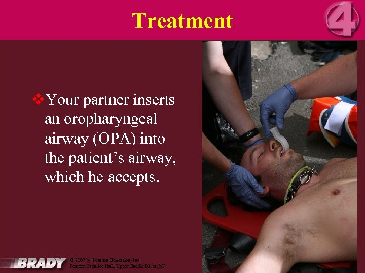 Treatment v. Your partner inserts an oropharyngeal airway (OPA) into the patient's airway, which