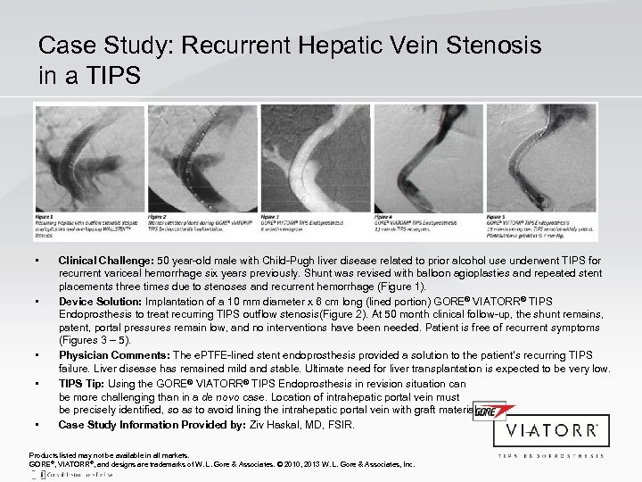 Case Study: Recurrent Hepatic Vein Stenosis in a TIPS • • • Clinical Challenge: