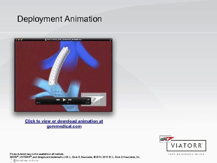 Deployment Animation Click to view or download animation at goremedical. com Products listed may