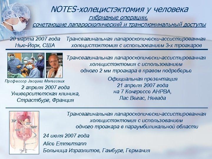 NOTES-холецистэктомия у человека гибридные операции, сочетающие лапароскопический и транслюминальный доступы 20 марта 2007 года